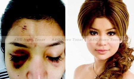 Cambodian actress Sasa shared images of her injuries on social media